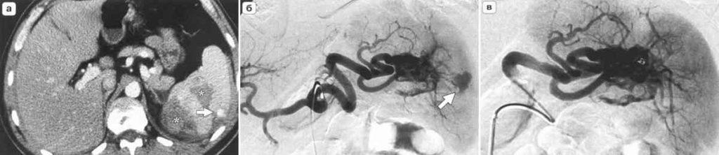 Сосудистое повреждение селезенки (томография с контрастом и УЗИ)