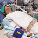 Анестезия при акромегалии