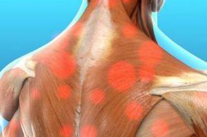 Миофасциальный болевой синдром