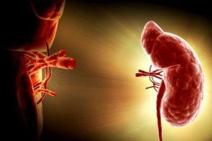 Пересадка (трансплантация) почки