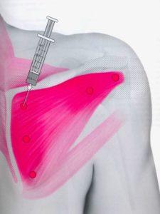 Блокада при боли в подостной мышце