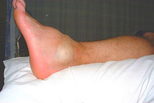 Гемартроз голеностопного сустава