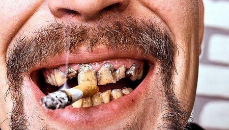 Рак губы от курения