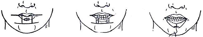 Резекция нижней губы при раке