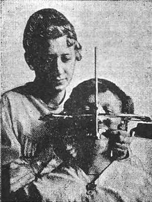Правильное положение рук врача, головы больного и гнатостата Симона во время снятия оттиска верхней челюсти
