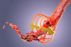 Артериальная гипертензия и анестезия