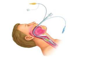 trudnye-dyxatelnye-puti-i-intubaciya