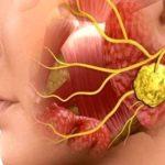 Увеличение слюнных желез после анестезии