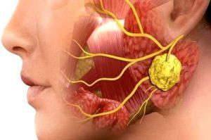 Увеличение слюнных желез после анестезии (наркоза)