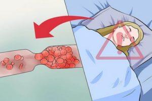 Эклампсия: распространенность, патогенез, лечение