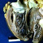 Сосочковые мышцы сердца
