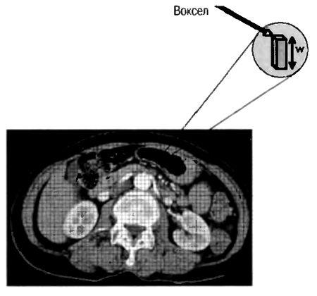 КТ-изображен не состоит из пикселов. Каждый пиксел изображения представляет среднюю величину ослабления рентгеновскою излучения в небольшом объеме (вокселе), соответствующем толщине среза (w).