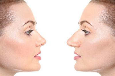 Классификация деформаций носа по Карташеву