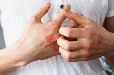 Экзема: это что, симптомы, причины, лечение
