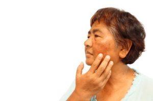 Болезнь Аддисона (бронзовая, аддисонова): причины, симптомы, диагностика, лечение