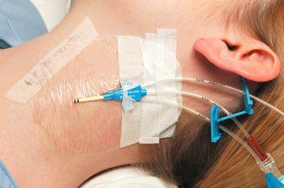 Ведение пациентов с катетер-ассоциированной инфекцией