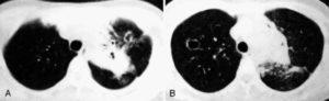 Инфекция Mycobacterium avium у больного с ВИЧ