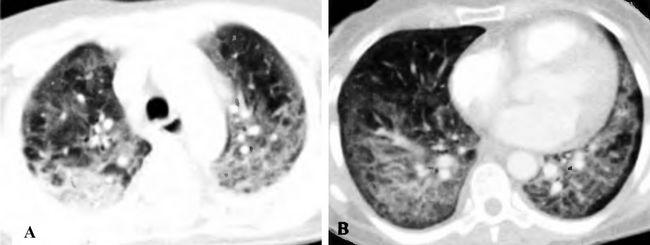 Пневмоцистная пневмония при ВИЧ