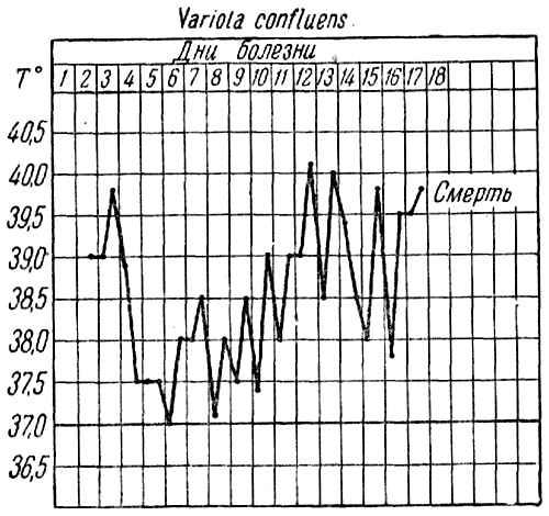 Кривая температура при сливной оспе (variola confluens)