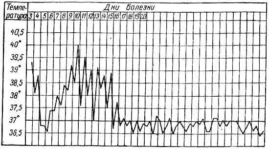 Кривая температуры при оспе