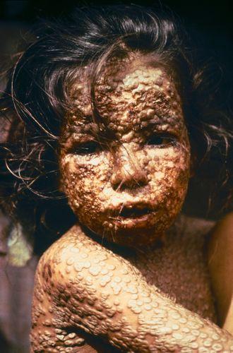 Оспа: фото ребенка