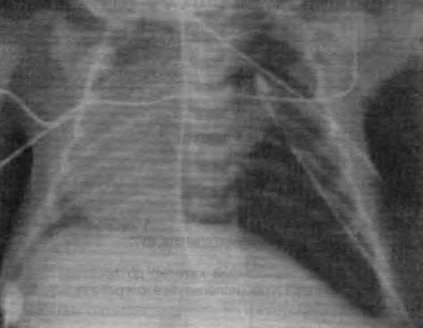 Рентгенограмма грудной клетки после коррекции врожденной диафрагмальной грыжи
