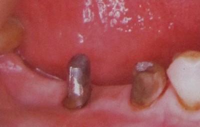Ситуация в полости рта пациента через 5 месяцев после гемисекции