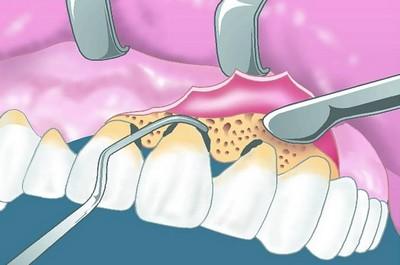 Открытый кюретаж: преимущества в стоматологии
