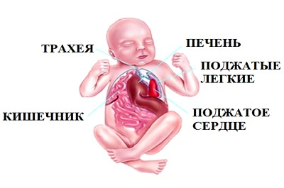 Врожденная диафрагмальная грыжа: анестезия и интенсивная терапия