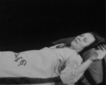 Летаргический энцефалит Экономо у женщины