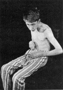 Летаргический энцефалит у мальчика
