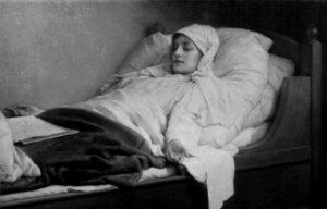 Летаргический энцефалит у женщины