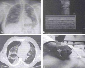 Различные методы диагностики пневмоторакса