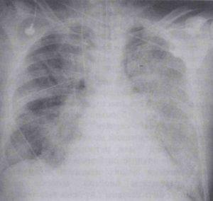 Рентгенограмма грудной клетки у пациента с острым респираторным дистресс-синдромом