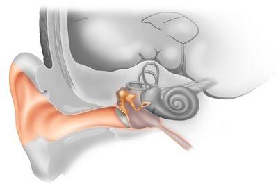 Отосклероз: симптомы, лечение (операция и без операции), причины, формы