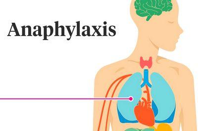 Анафилаксия и аллергия
