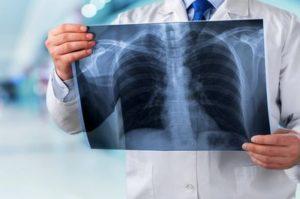 Аспирация: синдром Мендельсона, аспирационные пневмонит и пневмония, симптомы, диагностика, лечение