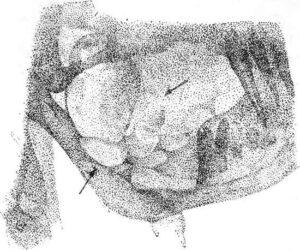 Адамантинома угла и восходящей ветви нижней челюсти