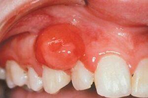 Доброкачественные опухоли челюстей: фибромы, ангиомы, интраоссальные опухоли, хондрома, остеомы, одонтомы, экзостозы, элдотелиома