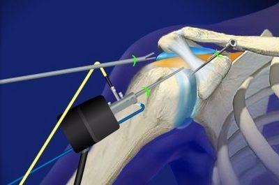 Операции на плечевом суставе и анестезия
