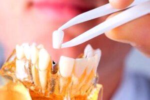 Двухэтапная имплантация зубов