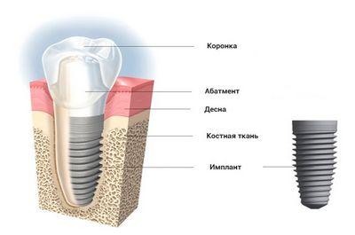 Строение имплантата