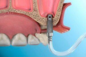 Синус-лифтинг и аугментация при имплантации