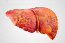 Цирроз печени: виды и диагностика