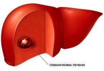 Опухоль печени - гемангиома (код по МКБ 10, УЗИ, КТ, МРТ)