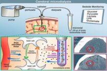 Микродиализ