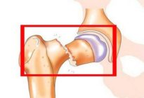 Последствия переломов костей